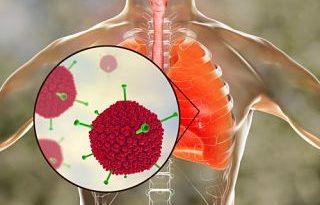 ATENCIÓN: Síndrome respiratorio agudo severo: ¿qué es?