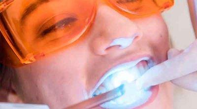 TEN CUIDADO: Blanquear los dientes puede dañar su colágeno y proteínas