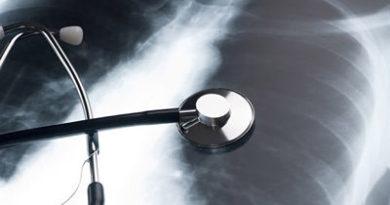 ATENCIÓN: Un dispositivo hace 'trasplantables' pulmones que hasta ahora se desechaban