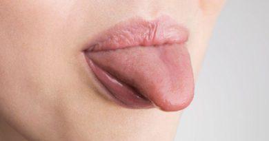 ATENCIÓN: Remedios naturales que te ayudarán a combatir la lengua blanca