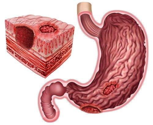 ATENCIÓN: Úlcera péptica y Helicobacter pylori
