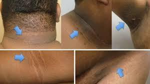 Atención: Remedios para aclarar las manchas en el cuello