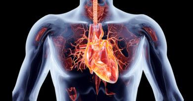 ATENCIÓN: Del paciente en coma por paro cardíaco