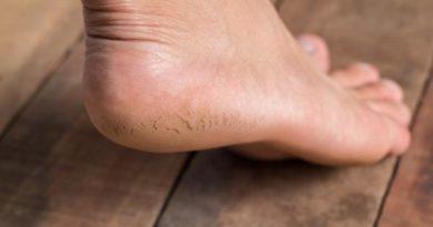 ATENCIÓN: Maneras rápidas para deshacerte de los callos y hacer que tus pies sean suaves como los de un bebé