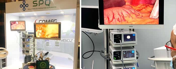 Tecnología 4K, aliada de los especialistas en la cirugía de mínima invasión