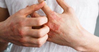 ATENCIÓN: ¿Qué es la dermatitis atópica?