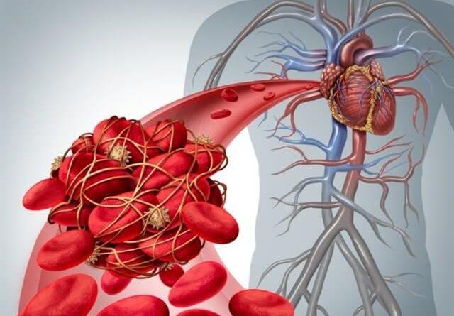ATENCIÓN: Embolia pulmonar: síntomas y tratamiento