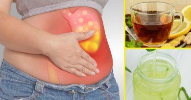 ATENCIÓN: Alternativas naturales para tratar la acidez estomacal SIN tomar Omeprazol