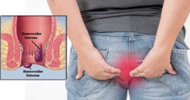 ATENCIÓN: Remedios naturales para las hemorroides