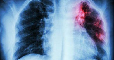 Pacientes con fibrosis pulmonar idiopática pueden desarrollar cáncer pulmonar