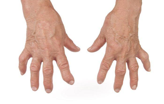 Síndrome de Sjögren: una enfermedad silenciosa que afecta principalmente a las mujeres
