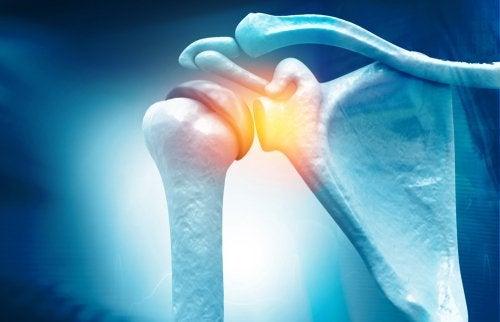 OJO: Capsulitis adhesiva: causas y tratamiento