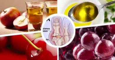 ATENCIÓN CON ESTO: La gota, 12 remedios naturales para combatirla