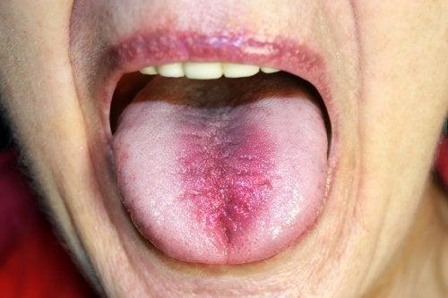 ATENCIÓN: Síndrome de la boca ardiente