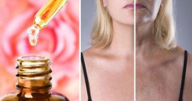 ATENCIÓN: Aceite de rosa mosqueta para eliminar las arrugas y tener una piel más bonita