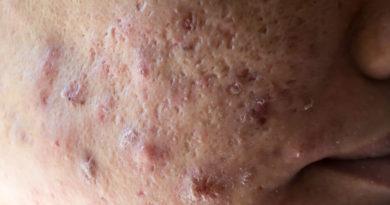ATENCIÓN: ¿Qué es el acné quístico?