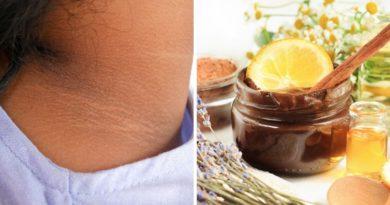 ATENCIÓN: Potentes remedios para quitar las manchas en el cuello en menos de una semana