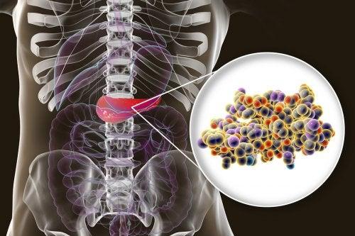 ATENCIÓN: Insulina: ¿qué es y para qué sirve?