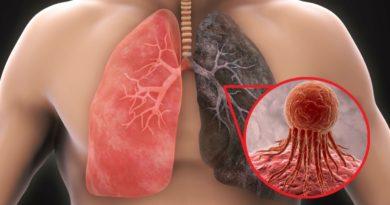 ALERTA: Visita de doctor: cuáles son las complicaciones que tiene el cáncer de pulmón