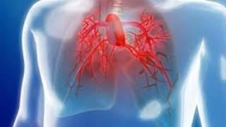 La Enfermedad Pulmonar Obstructiva Crónica: Un problema de dimensiones globales que es hora de priorizar
