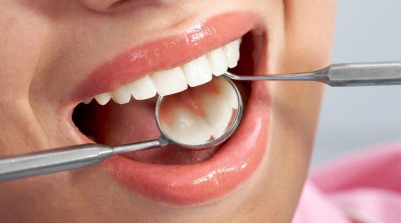 ATENCIÓN: Quistes en los dientes