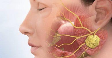 OJO: Cálculo de la glándula salival