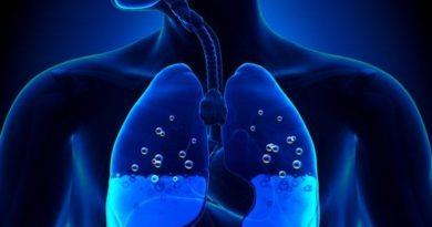 OJO: Edema pulmonar, ¿cuáles son sus síntomas y causas?