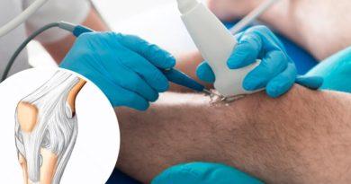 ATENCIÓN: Cirugía de rodilla: ¿cuáles son los riesgos?