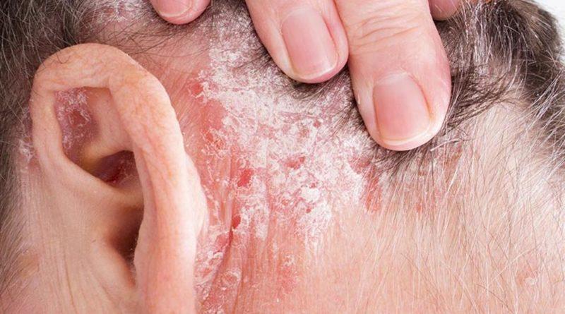 ATENCIÓN: Psoriasis: Síntomas, causas y cómo tratar la enfermedad