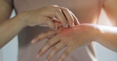 Dermatilomanía, el trastorno hace que tengas que rascarte continuamente