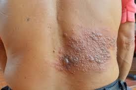 ATENCIÓN: Tratamiento natural para el Herpes Zóster