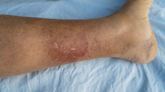 pierna infectada