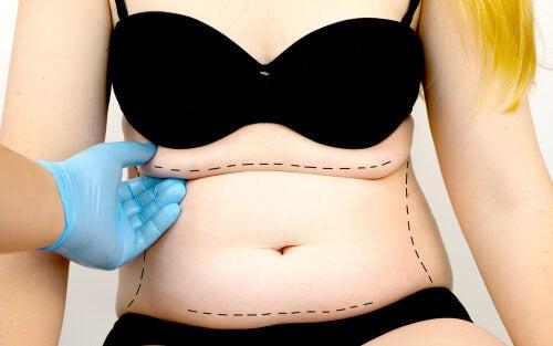 ATENCIÓN: ¿Qué es la abdominoplastia?