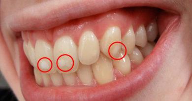 Demasiado flúor puede destrozar los dientes: la enfermedad tras las 'manchitas' blancas
