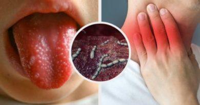 ATENCIÓN: Escarlatina o fiebre escarlata