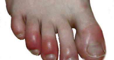 Los pies manifiestan patologías cardíacas que pueden ser detectadas por los podiatras