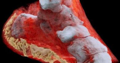 Adiós al blanco y negro: llegan las radiografías a color