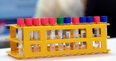 Podría haber cuatro tipos de pacientes con covid-19, y así es cómo se ven afectados