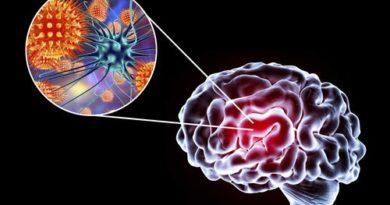 Encefalitis: síntomas, causas y tratamiento