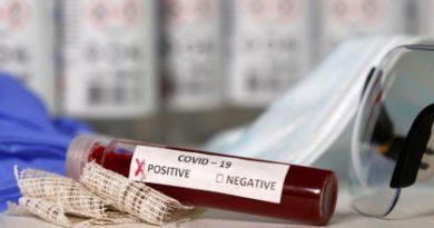 Coronavirus: Salud Pública ya recibió las pruebas rápidas para el Covid-19