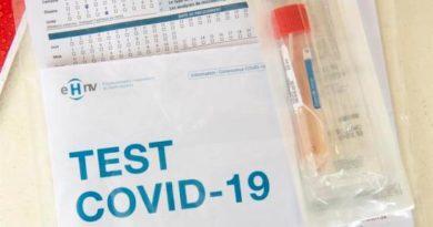 Estudio apunta graves problemas cardiovasculares asociados a la COVID-19