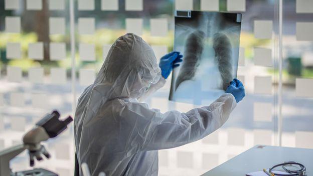 Un médico protegido con un traje observa una radiografía