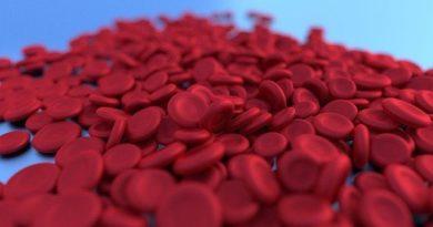 La anemia y la pérdida de peso