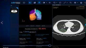 Claro instala en Santiago segundo sistema de diagnóstico de COVID-19 basado en Inteligencia Artificial