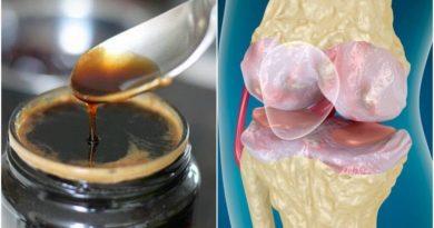 Tratamiento para fortalecer los huesos y las articulaciones