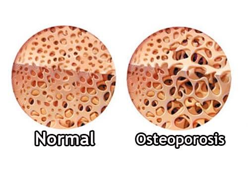 Tipos de osteoporosis Los tipos de osteoporosis son variados. En principio, se dividen en primarias y secundarias, pero hay más subclasificaciones que te comentamos en este artículo. Factores de riesgo de la osteoporosis Ectoparásitos: ácaros, pulgas y más TSH baja: ¿cuáles son las causas? Existen varios tipos de osteoporosis, pero ninguno de ellos es fácil de detectar. Uno de los problemas es el hecho de queesta enfermedades asintomática, y se hace visible cuando aparecen las complicaciones.Mientras tanto, la situación avanza y pone en riesgo la salud. En la mayoría los tipos de osteoporosis hay dos factores de riesgo que deben ser tomados en consideración: la edad y el sexo. Esta patología afecta con más frecuencia a las mujeres ytiene mayor prevalencia a medida que aumenta la edad. ¿Qué es la osteoporosis? La osteoporosis es una enfermedad generalizada del sistema esquelético.Su principal característica reside en lapérdida de masa óseay el deterioro de la microarquitectura de los huesos. Esto, en conjunto, lleva a que el tejido se vuelva más frágil, y por lo tanto haya mayor riesgo de fracturas. La densidad óseacomienza a reducirse a los 40 años, tanto en mujeres como en hombres. Se desconoce la razón por la cual se produce esta pérdida asociada a la edad, pero se calcula que oscila en un rango deentre el 0,3 y 0,5 % al año, a partir de esa edad. Lo más habitual es que la enfermedad se detecte luego de que haya unafractura. Esta puede presentarse en cualquier parte del cuerpo,muchas veces de forma espontánea o por un golpe mínimo. En general, siempre que haya una rotura de un hueso por fragilidad, debe considerarse osteoporótica. La densidad ósea determina la presencia o no de osteoporosis, en base a una prueba diagnóstica Sigue leyendo:5 remedios para el dolor de huesos Tipos de osteoporosis Los tipos de osteoporosisse clasifican en dos grandes grupos: primarias y secundarias. Las primeras corresponden al mayor número de casos y no son fruto de otra enfermedad q