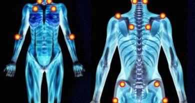 La fibromialgia: 5 síntomas tempranos
