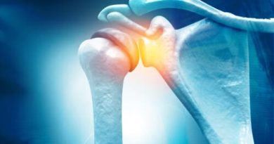 Capsulitis adhesiva: causas y tratamiento