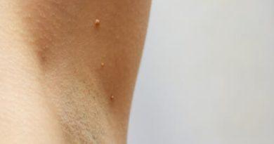 Tratamiento de las verrugas en las axilas