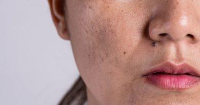 ¿Qué tipos de manchas existen en la piel?
